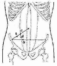 阑尾根部体表投影点