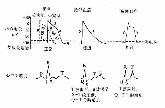 血浆钾浓度对心肌细胞膜电位及心电图的影响