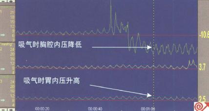 近端压力通道位于膈肌上方,图示吸气时压力下降