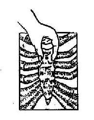 胸骨穿刺时手固定胸骨的姿势
