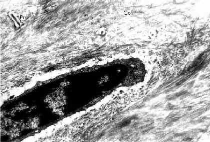 小鼠骨细胞和骨基质(脱钙后)电镜像