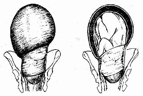 头盆不称引起的病理性缩复环