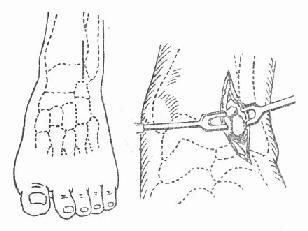 踝关节前外侧切开引流