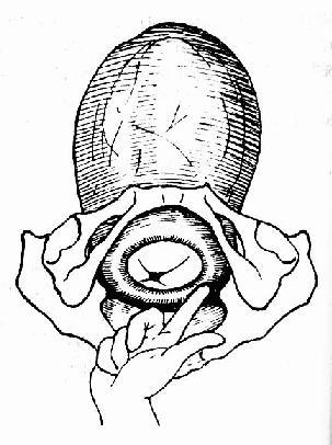 來回觸摸宮口邊緣,估計開大程度