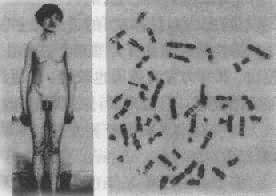 Klinefelter综合征患者及其核型