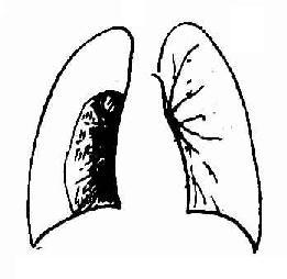 右侧气胸,右肺被压缩