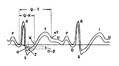 ST段下移测量方法示意图