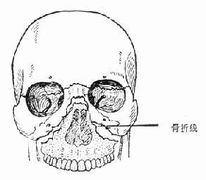上颌骨折骨Ⅱ型