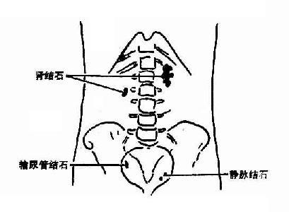 肾结石、右输尿管结石及左侧静脉结石