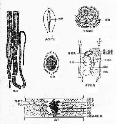 阔节裂头绦虫