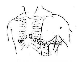 胸导联探查电极的位置