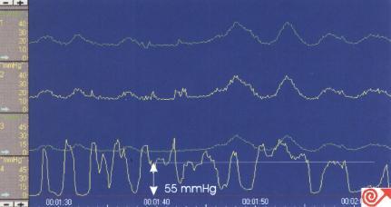一例10岁贲门失弛缓患儿定点牵拉测压图