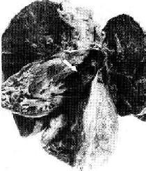 肺动脉血栓栓塞(箭头示)