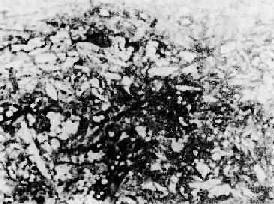 发展中的纤维粥样斑块
