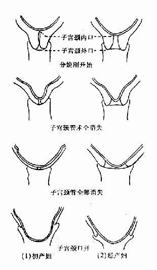 子宫颈管消失与子宫颈口扩张步骤
