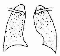 急性粟粒型肺结核