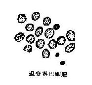 小細胞未分化癌細胞及其鑒別