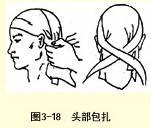头部三角巾包扎