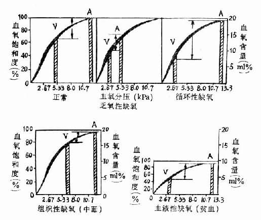 各型缺氧的血氧变化特点