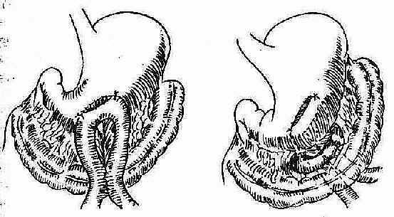 胃空肠吻合术之模式