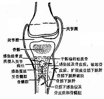 化脓性骨髓炎蔓延途径示意图