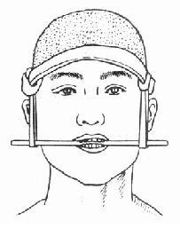 上頜骨骨折臨時固定法
