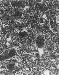 骨巨细胞瘤(Ⅰ级)