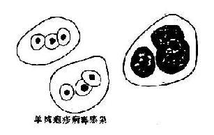 病毒感染时,痰涂片中的细胞内包涵体