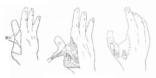 转移邻近残指再造拇指
