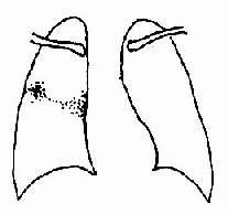 原发型肺结核-原发综合征