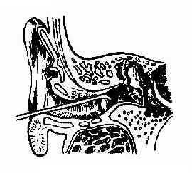 外耳道异物钩出法