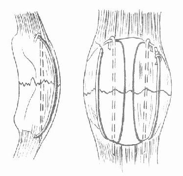中段横断骨折治疗