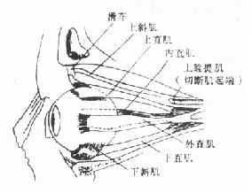 眼外肌之起端及止端圖解(左眼)