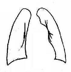 瓣膜型肺动脉狭窄