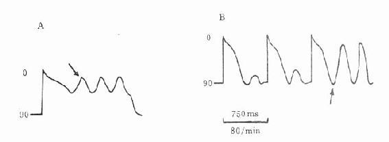 A早后除极与触发活动b迟后除极与触发活动