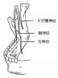 下牙槽神经、颊神经、舌神经位置示意图