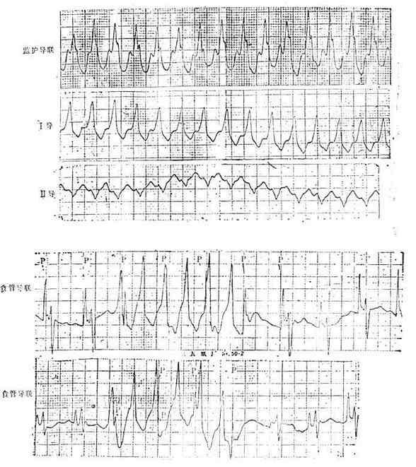 食管导联心电图室速。显示心房电活动波群(P)