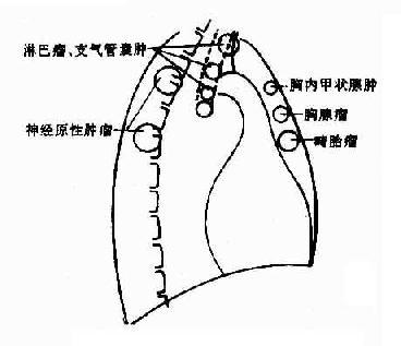 纵隔肿瘤发生部位
