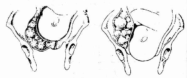 宫颈浆膜下肌瘤,随宫颈口的展平开大,向上退出盆腔,不影响分娩