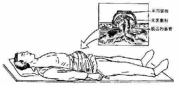 腹部火器伤急救包扎法