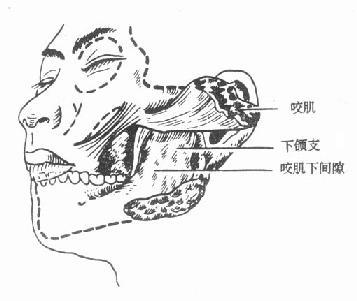 咬肌下蜂窝织发生的部位