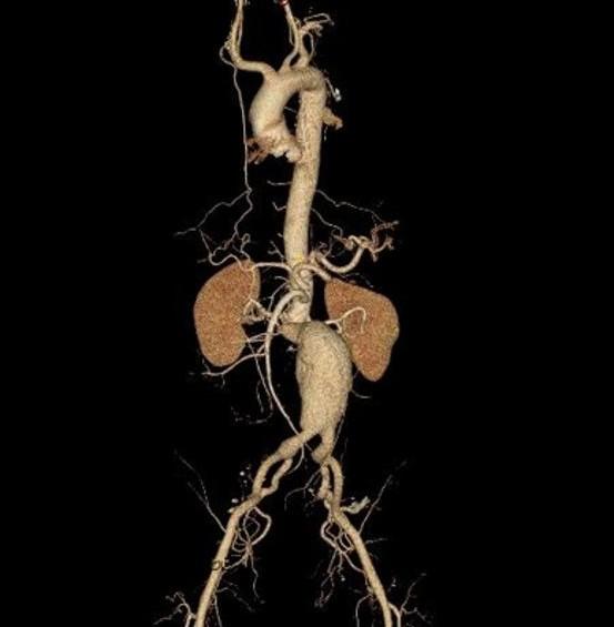 腹主动脉瘤.jpg