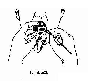 间接喉镜检查法