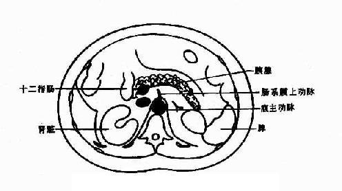 正常胰腺CT解剖示意圖