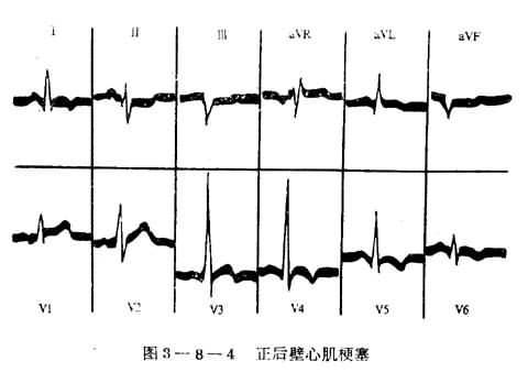 心肌梗塞的心電圖定位診斷