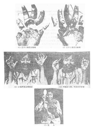 双手10指再植