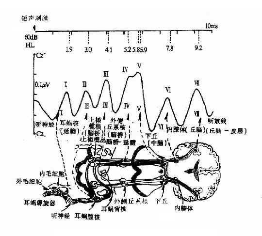 聽性腦幹反應典型七個波及來源示意圖