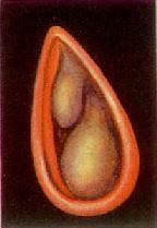 变应性鼻炎