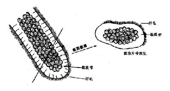 乳头状增生的假复层纤毛柱状上皮脱落后形态示意图