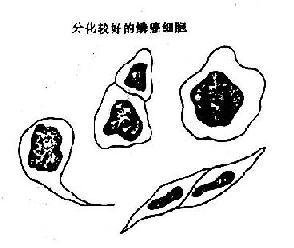 高分化鳞癌与鳞状化生, 核异质细胞鉴别示意图